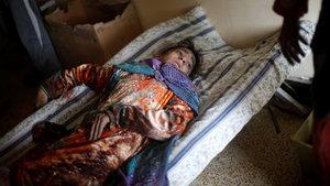 Musul'un doğusundaki tek sahra hastanesi yetersiz kaldı
