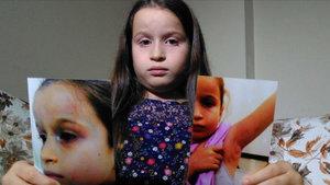 Bursa'da 8 yaşındaki kızın diş doktoru tarafından dövüldüğü iddiası