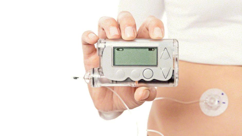 insülin pompası ile ilgili görsel sonucu