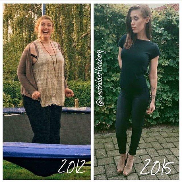 Obezite hastası Amber Rachdi 200 kilo verdi!