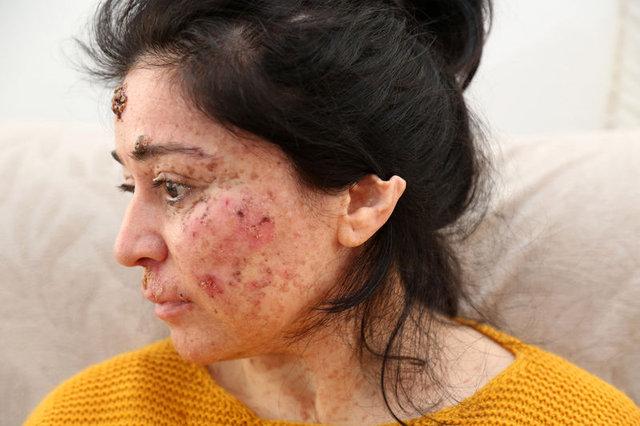 Antalya'da Sibel Oflas yüzündeki yaraların tedavisi için risksiz deneylere katılmak istiyor!