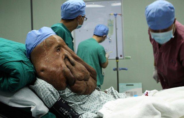 Huang Chuncai, 15 kilo tümörle dünyanın en büyük yüz tümörlü kişisi oldu!