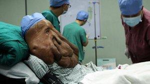 Ağaç adam Abul Bajander tedavi oldu!