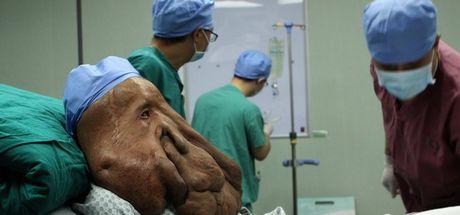 Virsaviya Borun isimli kızın kalbi dışarda atıyor! Talihsiz kızın kalbini sadece deri tutuyor