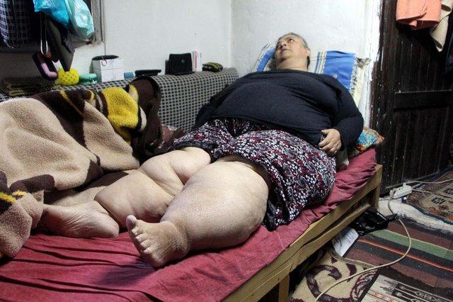 Fil hastası Ayşe Değirmenci nefes bile alamıyor!