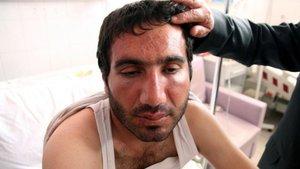Diyarbakır'da alnında bot izi çıkaran dayak için karar