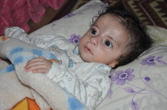 Kulak delikleri kapalı İsmail bebek için yardım istiyorlar!