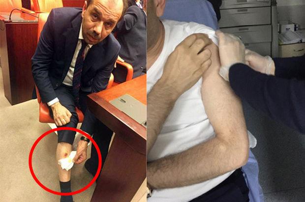 AK Partili vekilin Adli Tıp raporu açıklandı!