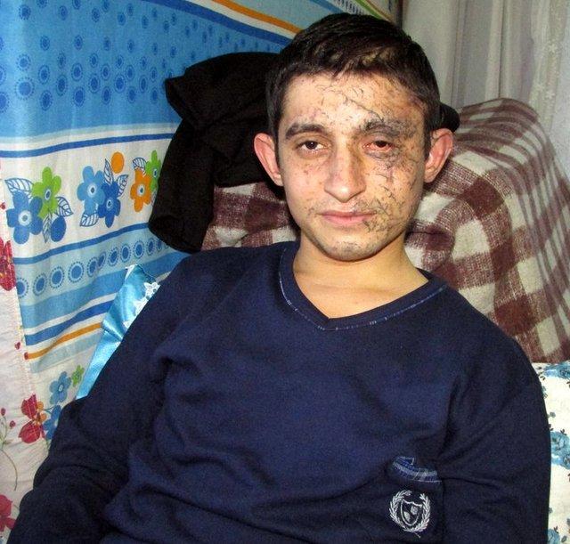 Kayseri saldırısından kurtulan asker yaşadıklarını anlattı