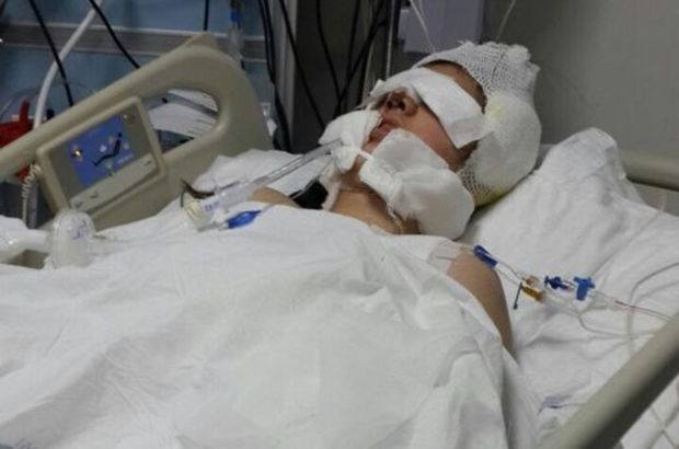 Burun ameliyatı olan Kübra Özüberk yaşamını yitirdi