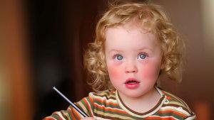 Çocuklarda tokatlanmış yanak sendromuna dikkat!