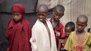 Somali'de 71 bin çocuğun ölme riski yüksek