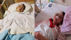 Fuhuşa zorlanıp öldüresiye dövülen Kırgız kadın 35 gün sonra konuştu
