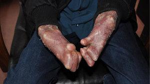 Elleri tamamen kapanan kelebek hastası Mehmet ameliyat oldu!