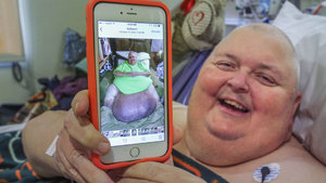 ABD'de hastanın karnından 59 kilogramlık tümör alındı