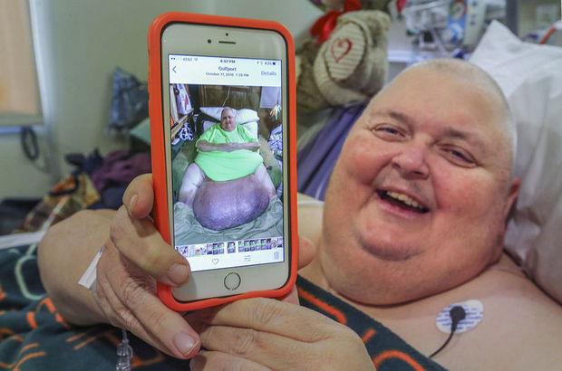 Roger Logan'ın karnından 59 kilogramlık tümör alındı