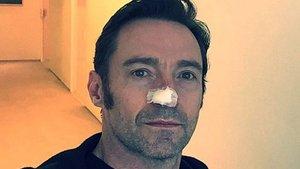 Hugh Jackman, altıncı kez operasyon geçirdi