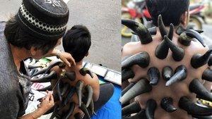 """Endonezya'da kulağı """"kulak mumu"""" ile temizliyorlar!"""