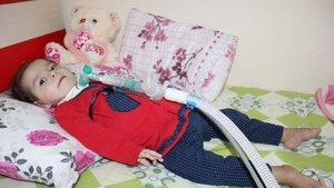 SMA hastası minik bebek yardım bekliyor