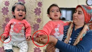 Bir yaşındaki Büşra Aslan'ın cildi sürekli kanıyor!