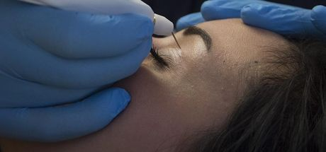 Göz kapağı düşüklüğü baş ağrısı sebebi olabilir mi?