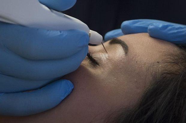 'Göz kapağı düşüklüğü baş ağrısı sebebi olabilir'