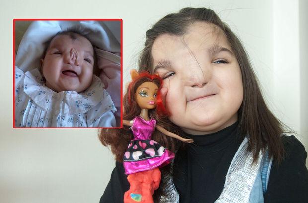 5 yaşındaki Duru Atraf ameliyat için gün bekliyor!
