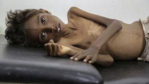 Afrika'da 20 milyon kişi açlık tehlikesiyle karşı karşıya