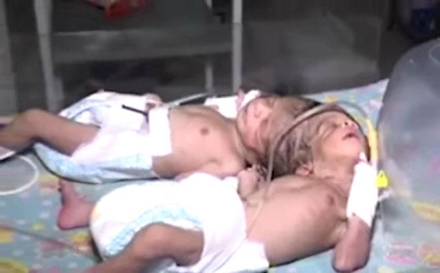 Kafadan yapışık ikizler aynı beyni paylaşıyor olabilir!