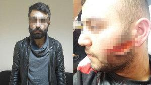 Bursa'da emniyet kemeriyle boğazını sıktıkları taksicinin parasını gasbettiler
