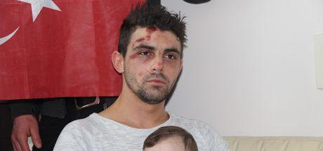 Hollanda'da polis köpeğinin saldırısına uğrayan Hüseyin Kurt, Türkiye'ye getirildi