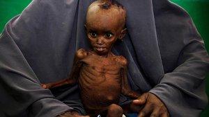 'Somali'de 343 kişi hayatını kaybetti'