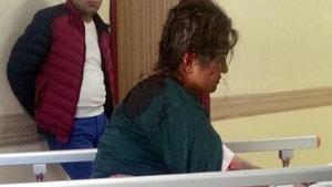 Kayseri'de köpeklerin 80 yerinden ısırdığı kadın ağır yaralandı