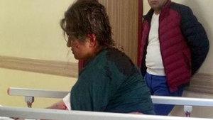 Kayseri'de 80 yerinden ısırılan kadın olay anını anlattı