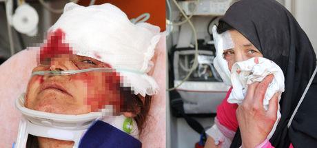 Adana'daki Suriyelilerin satırlı sopalı kavgası: 2'si kadın 7 yaralı