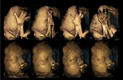 Anne Rahmindeki Bebekler Sigaraya Boyle Tepki Verdi