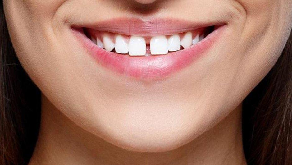 Aralıklı dişler