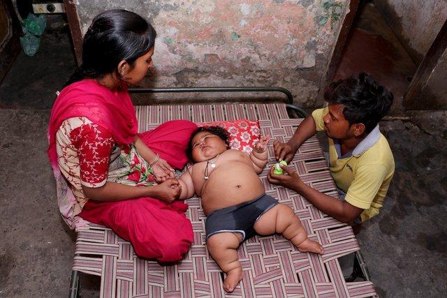 8 aylık Chahat Kumar bebek 17 kilo!