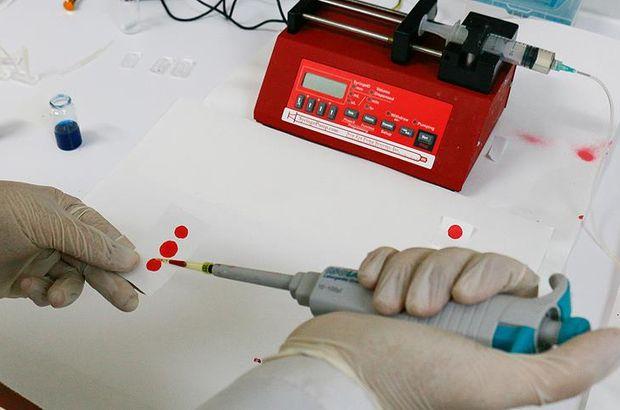 Hepatit B tedavisi