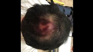 İzmirli işadamı Mert Aydoğdu öldüresiye dövüldü