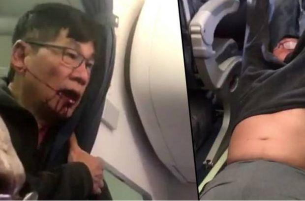 United Airlines, uçaktan attığı doktorla anlaştı