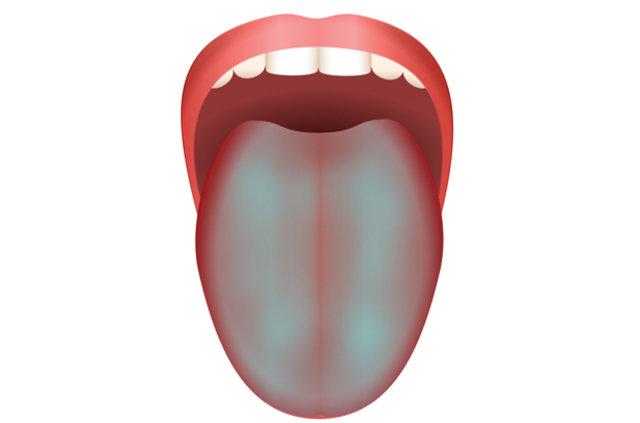 Sağlıklı dil ne renktir?