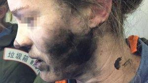 Uçuş sırasında patlayan Beats kulaklık kadının yüzünü yaktı