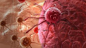 Obezite kansere yol açar mı?
