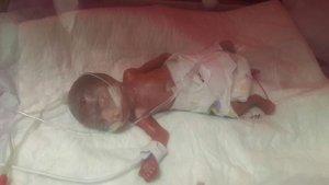 Konya'da 560 gram doğan Erva bebek 4 ay sonra taburcu oldu