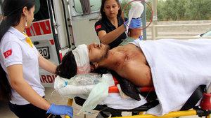 Muğla'da otostopla bindiği otomobil kaza yapınca eli koptu