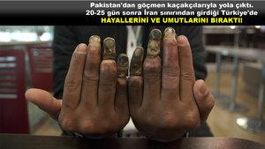Üzeyir Naumi, Türkiye'de ayda 2 bin 500 lirayla yaşam hayalinin bedelini parmaklarıyla ödedi