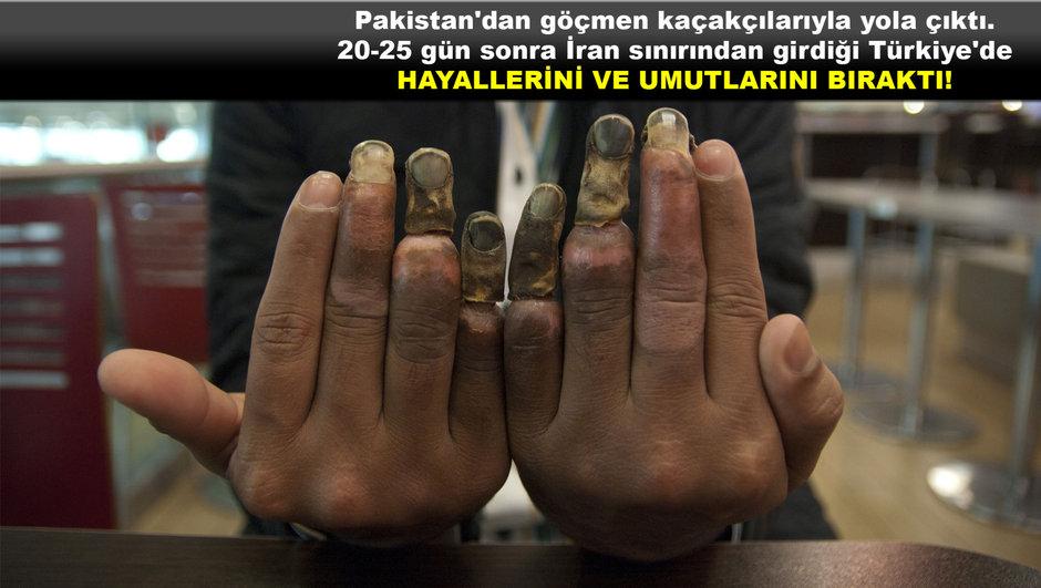 Türkiye hayalinin bedelini bu parmaklarla ödedi!