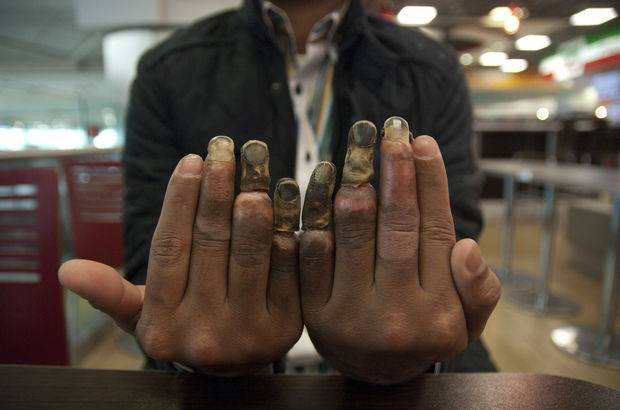 His Europe dream ended up melted fingers in Turkey