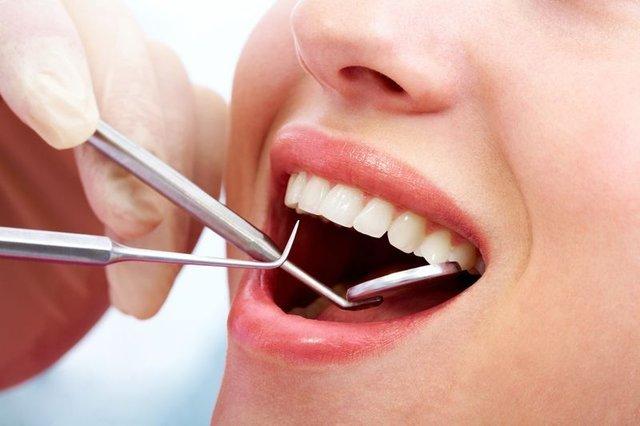 Oruçluyken ağız kokusunu önlemenin yolları! Ağız kokusu nasıl geçer?